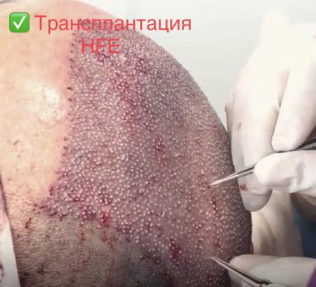 Трансплантация волос у мужчин